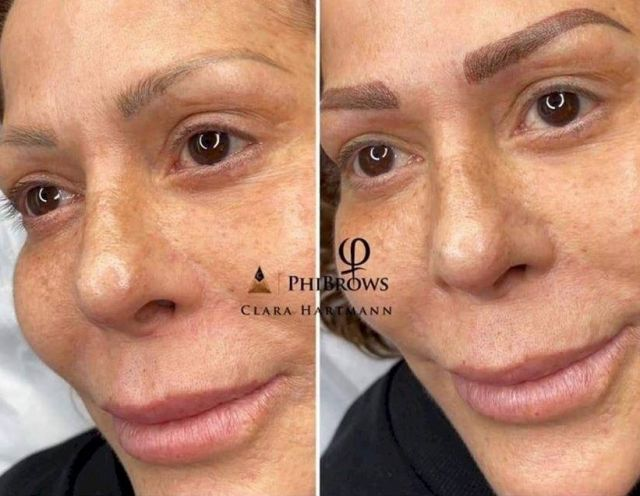 Resultado de imagen para Alejandra Guzmán: cirugías